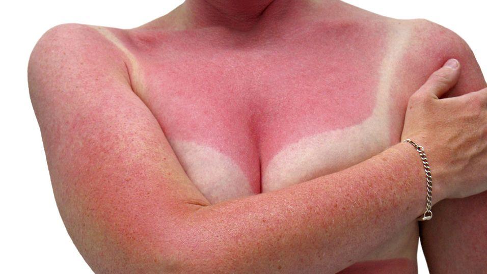 Et nytt armbånd med et UV-dosimeter skal forhindre solbrenthet. Det gammeldagse armbåndet på dette bildet ser imidlertid ut til å ha gjort en dårlig jobb.