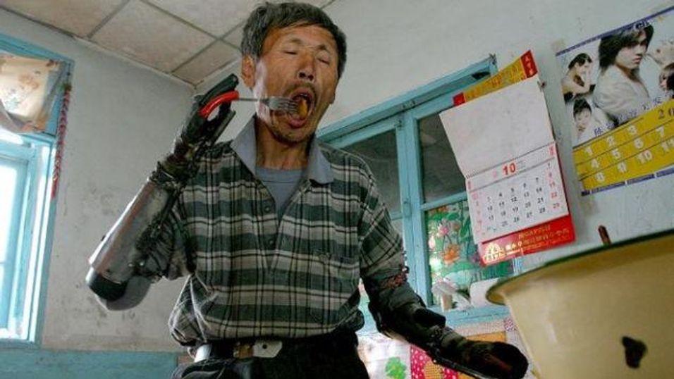 Sun Jifa mistet begge armene da han lagde en bombe for fisking. Han brukte 8 år på å bygge nye, kunstige armer.