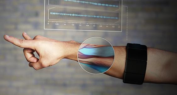 Thalmic Myo: Dette armbåndet lytter til musklene dine.
