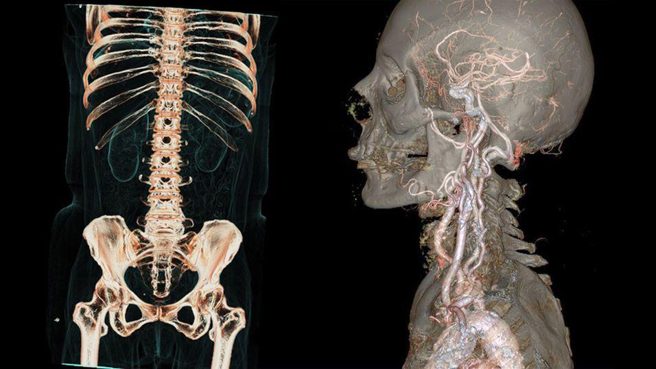 Disse bildene er tatt med en helt ny CT-scanner