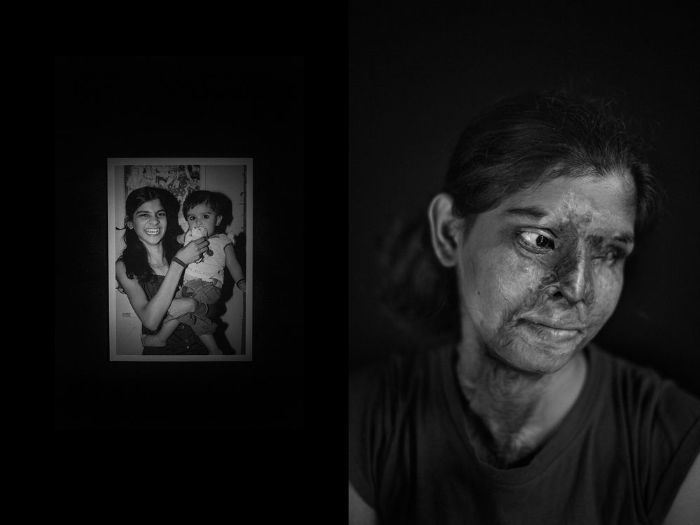 Portraits from the Acid attack survivors in India.
