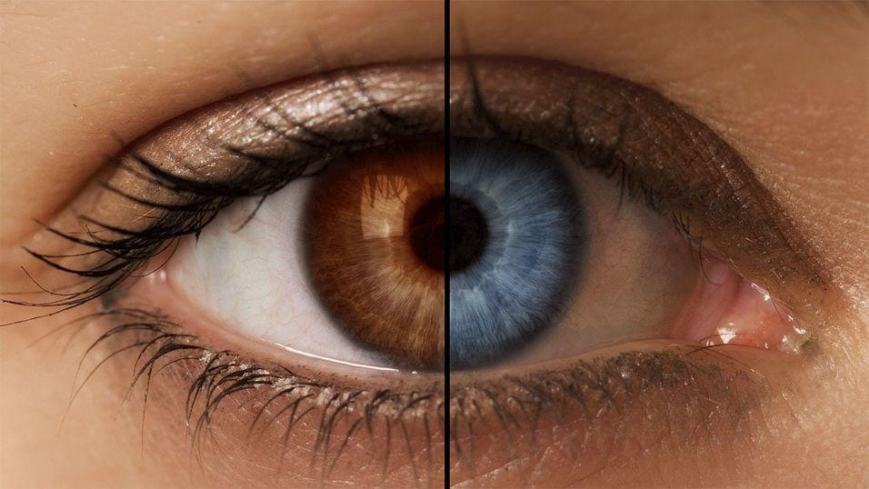 Brune øyne kan bli blå med ny laseroperasjon