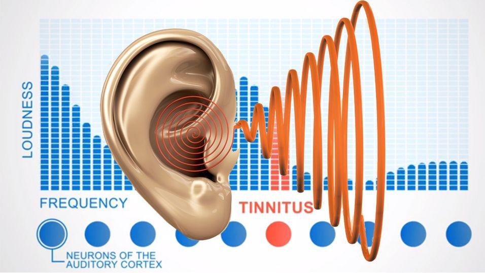 – Tinnitus kan behandles med musikk