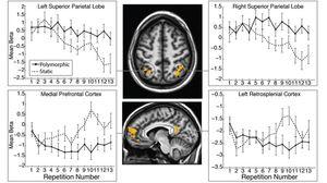 Hjernes aktivitet stuper når den utsettes for de samme advarslene gang etter gang.