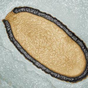 Et av virusene som har blitt vekket til live igjen, Pithovirus sibericum.