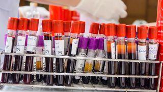 Norsk firma vil gi deg svar på blodprøvene dine