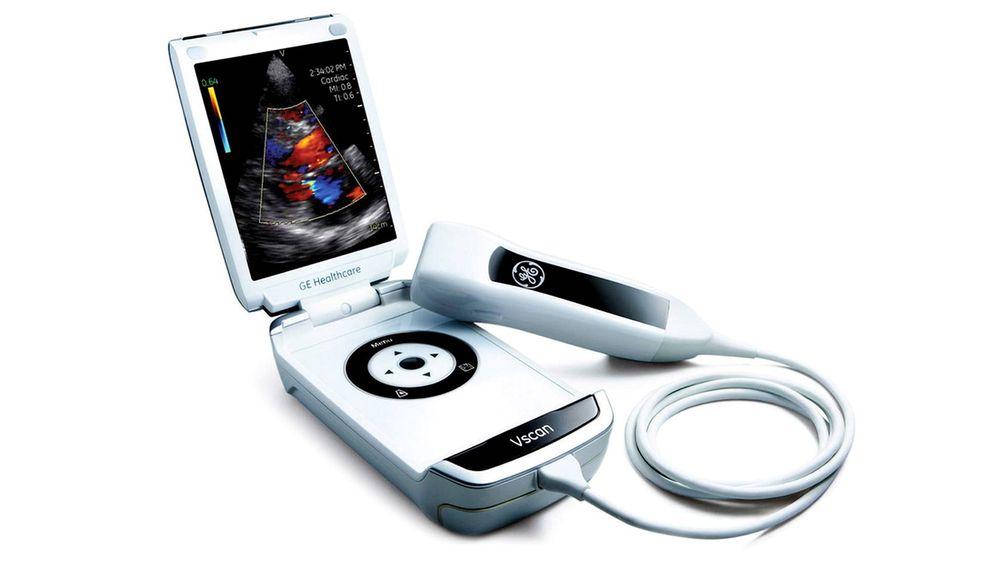 Bragd: Det håndholdte ultralydapparatet Vscan, som er litt større enn en mobiltelefon, ble i 2009 kåret til Årets ingeniørbragd av Teknisk Ukeblads lesere og jury.