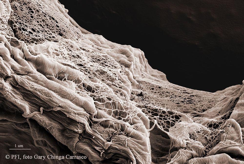 Man må bruke sterk forstørrelse for å kunne se de enkelte fibrillene, som i dette bildet hvor de fleste fibrillene har diameter på ca. 15 nanometer. Foto: Gary Chinga Carrasco