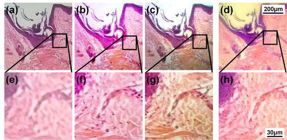 Foto: Sung3.jpgBildetekst: Et tynt tverrsnitt av en menneskelig hårsekk på et mikroskopglass er undersøkt med ulike metoder. De første fire bildene (a-c) er tatt med et tradisjonelt mikroskop som heter Olympus IX-70. Forstørrelsen er henholdsvis 40, 100 og 200 ganger. Det fjerde bildet (d) er tatt med smarttelefonen Nokia Lumia 520 med klistrelinse. Bilderekka under (d-g) viser de respektive forstørrede regionene. (Foto: Wei-Chuan Shih NanoBioPhotonics Group)