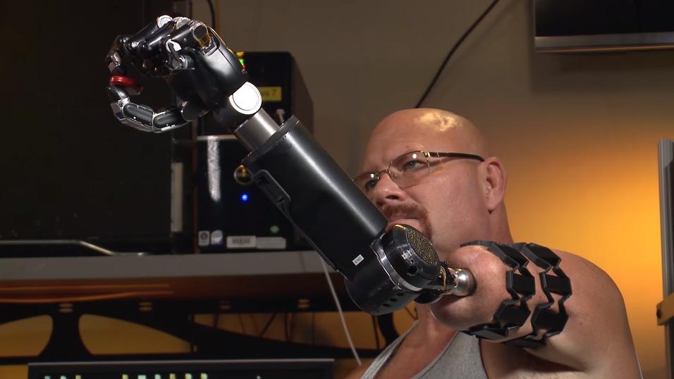 Slik ser robotarmen ut.