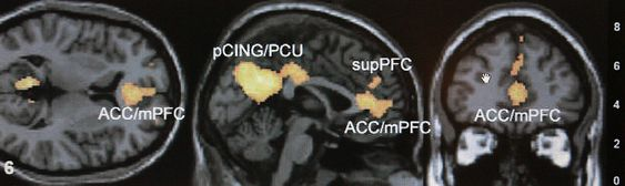 A computer generated composite of a Functional Magnetic Resonance Imaging, FMRI, picture of a brain is shown on a computer screen on Emory University's campus in Atlanta, Monday, Jan. 30, 2006. A new study at Emory, which for the first time examined the brains of political partisans, found that it's emotion- not reason that drives the political thought process. (AP Photo/Ric Feld)