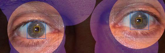 Avansert programvare: Programvaren Volk Eye Check i mobiltelefonen kan ut fra pupillenes posisjon, refleksen i pupillene og flere andre anatomiske parametere regne ut vinkelen mellom øynene.