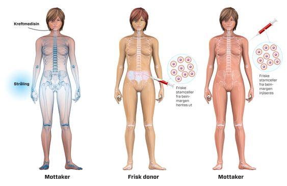Stamceller til kreftbehandling.