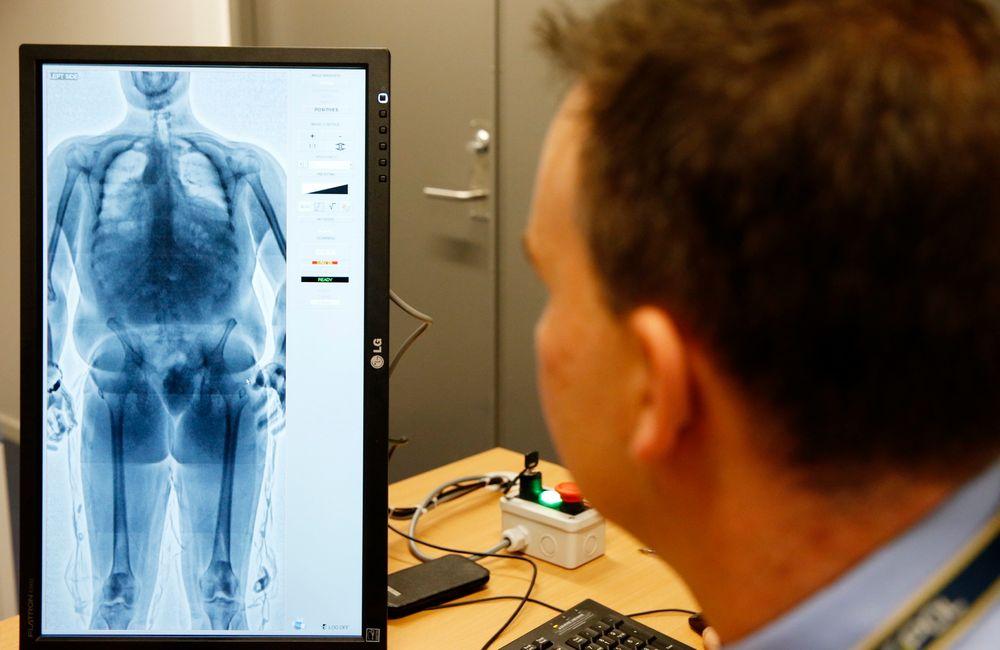 Tollvesenet  tar ibruk kroppskanner for å avsløre smugling skjult i kroppen. Røntgenskannerer er plassert på Oslo hovedflyplass Gardermoen. Det er frivillig om misstenkte vil la seg skanne, alternativt vil man i de tilfeller benytte seg av den tradisjonelle metoden.