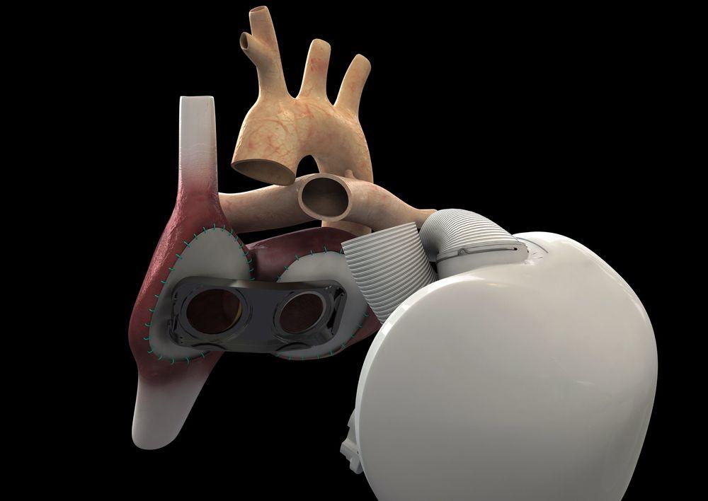 """Rammeverket av hjertet er skissert for å vise hvordan blodårene går. """"Hullene"""" viser de to hovedårene  til hjertet."""