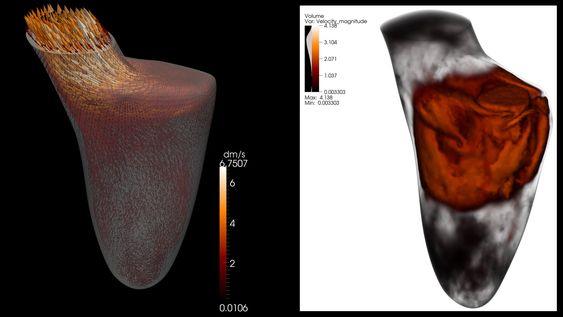 Datasimulering av blodstrømmen i hjertets venstre kammer.