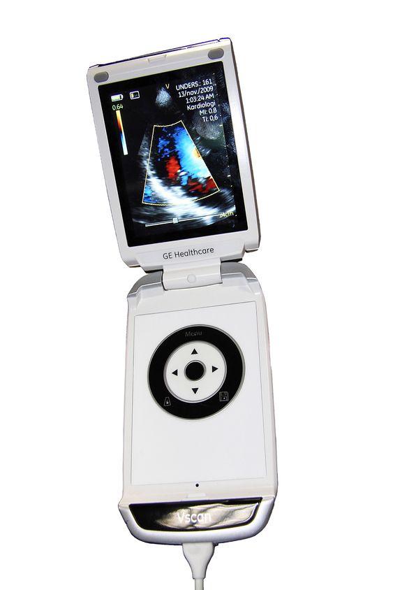 PORTABEL ULTRALYD: GE Vingmed Ultrasound.