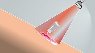Kurerer kreft med lys og kjemi