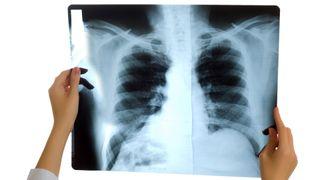 Scanner kreft med mindre radioaktivitet