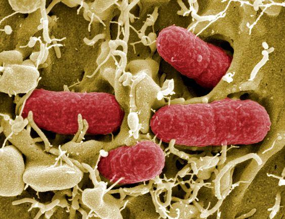 FARLIG: Flere har utviklet den farlige sykdommen HUS i nyrene etter å ha blitt smittet av E.coli-bakterien EHEC.