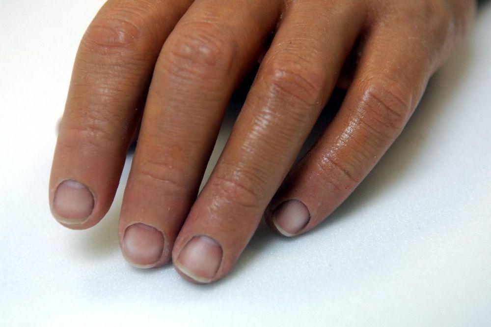 PROTESETEKNOLOGI: Fougner jobber med å utvikle et mer avansert system som gjør at man skal klare å bøye håndleddet, rotere hånden, knipe tommel og pekefinger mot hverandre og ta et fast grep.