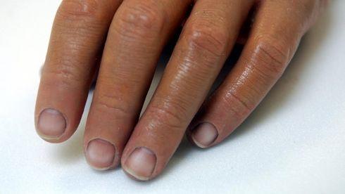 Forsker på ny proteseteknologi