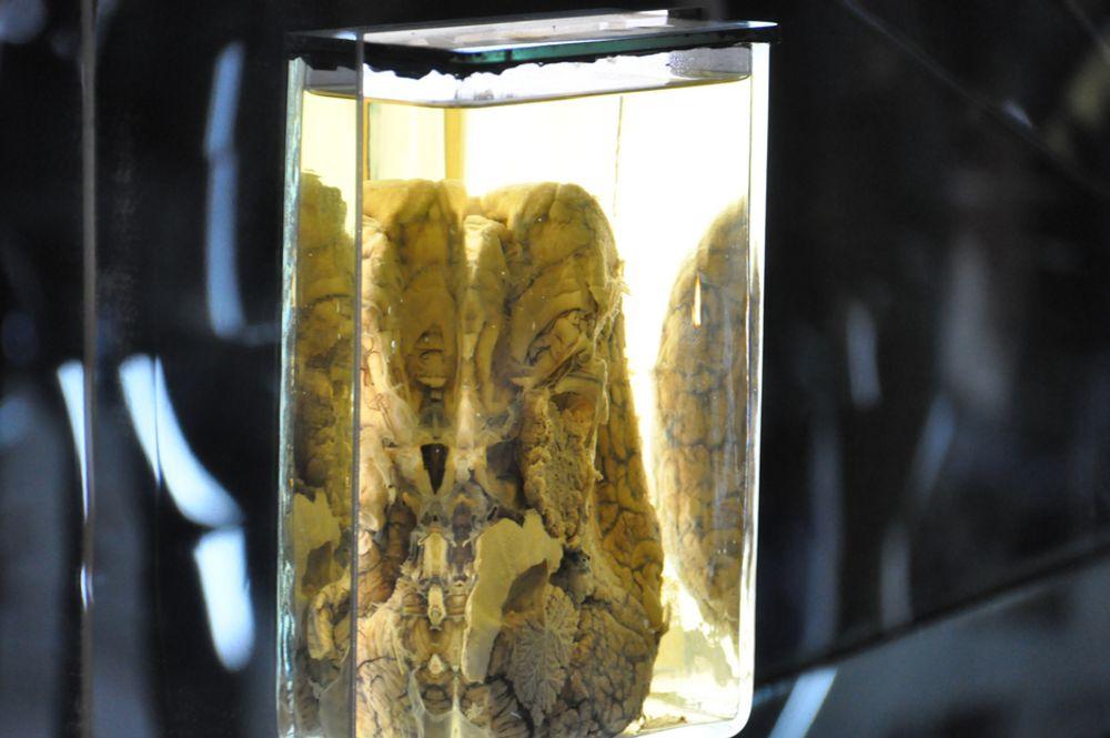 Barnehjerne med hjernebetennelse er en av tingene du kan se på Teknisk Museums nye utstilling Mind Gap.