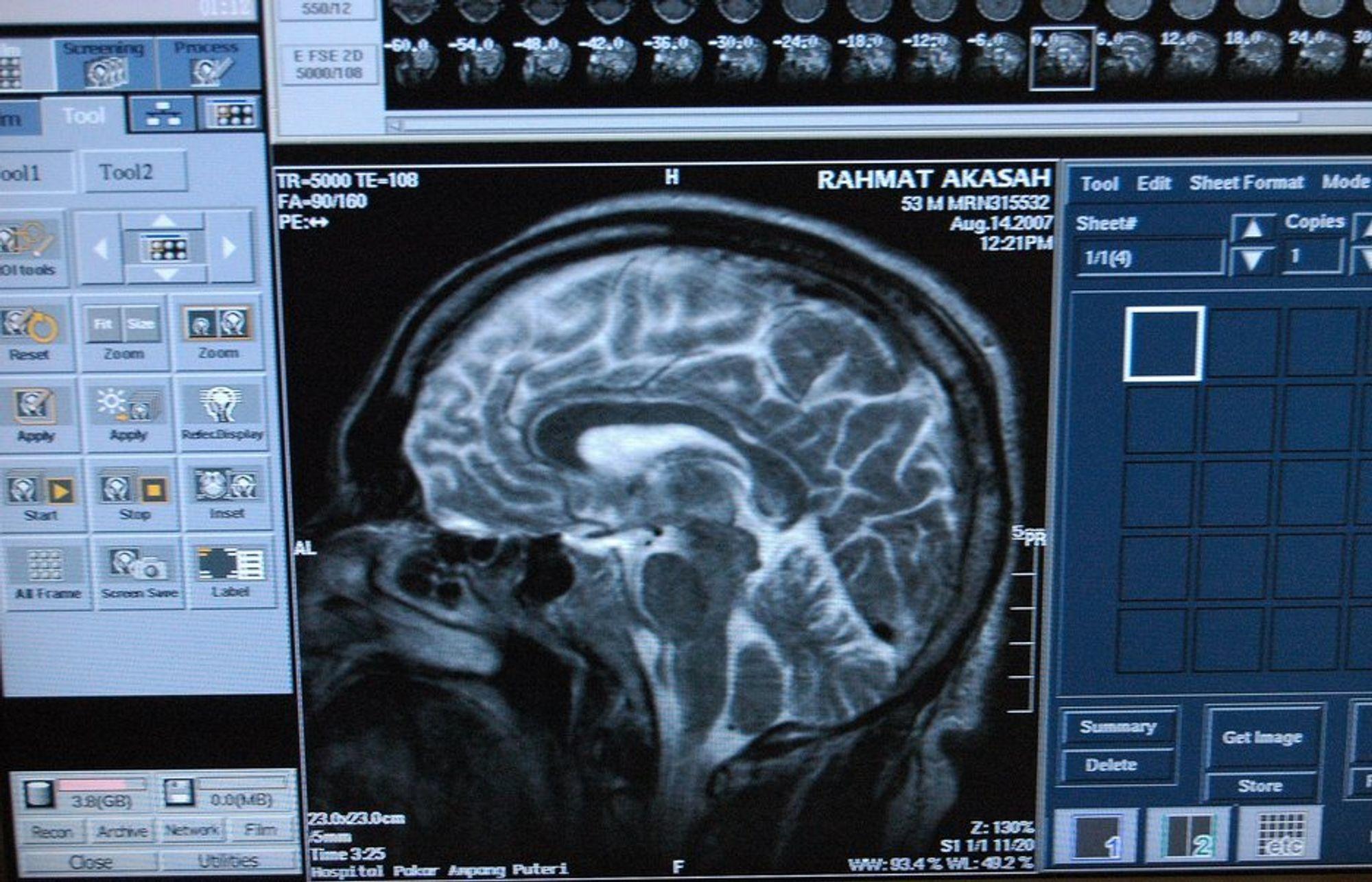 Interphone-undersøkelsen konkluderer med svært lite, men resultatene kan tyde på at de tunge brukerne av mobiltelefoner kan ha økt risiko for svulster i hjernen.