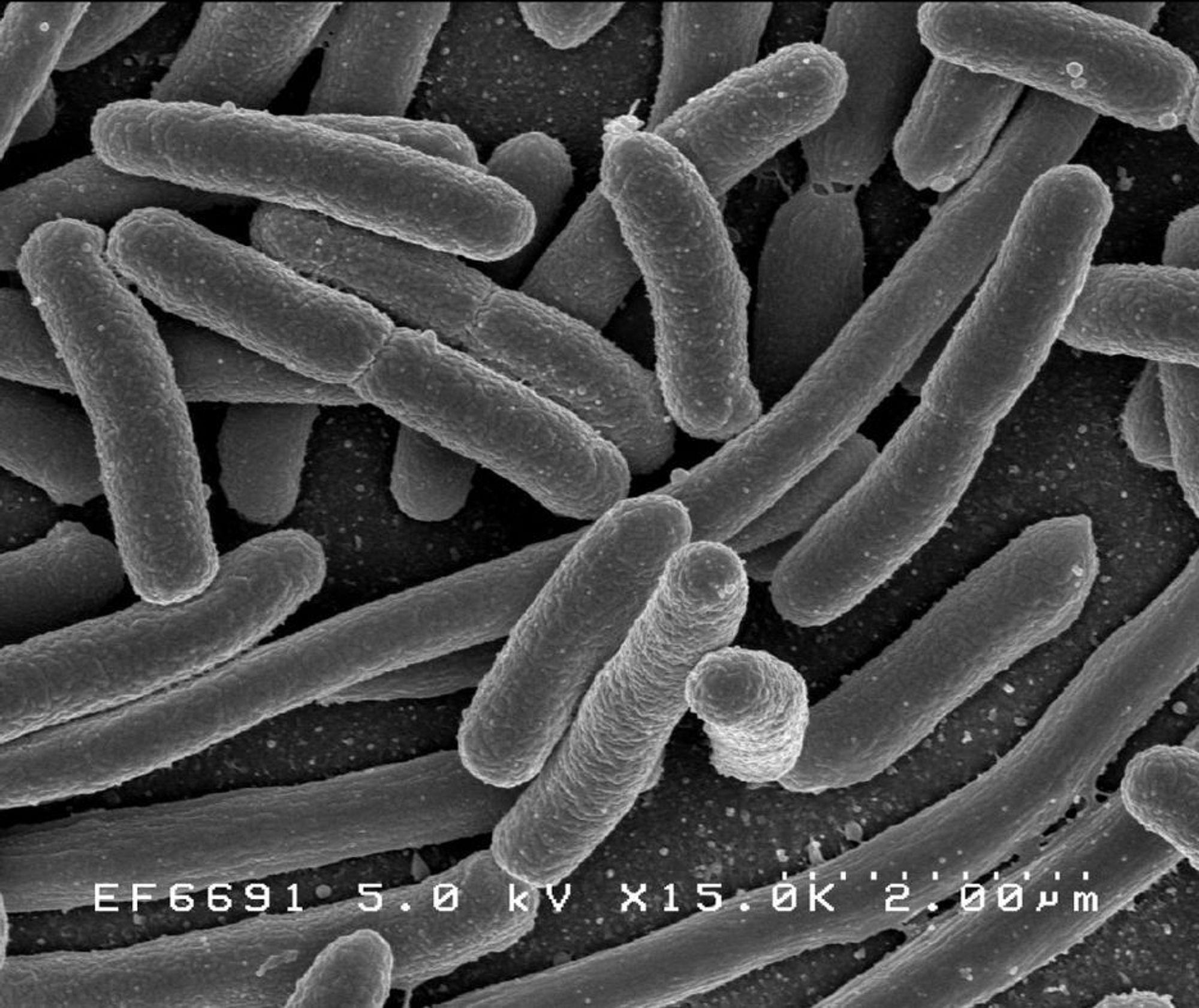 E-coli-bakterier kan snart tas knekken på av komponenter man finner i LCD-skjermer.