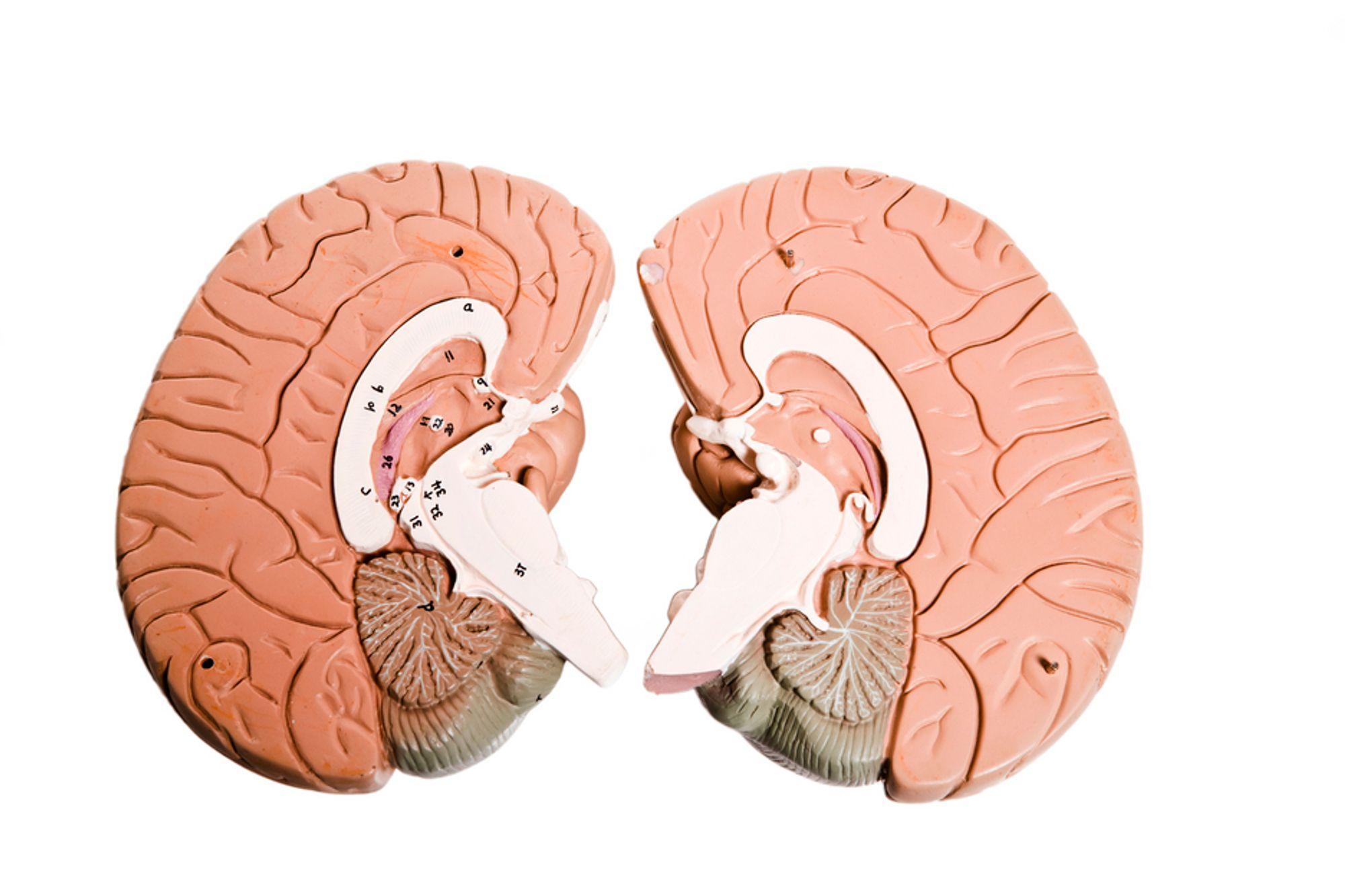 """Hjernen til Henry Molaison skal skjæres i 2500 tynne skiver, som så skal settes sammen til et """"digitalt hjerneatlas"""", komplett med delene som ble skåret ut i 1953."""