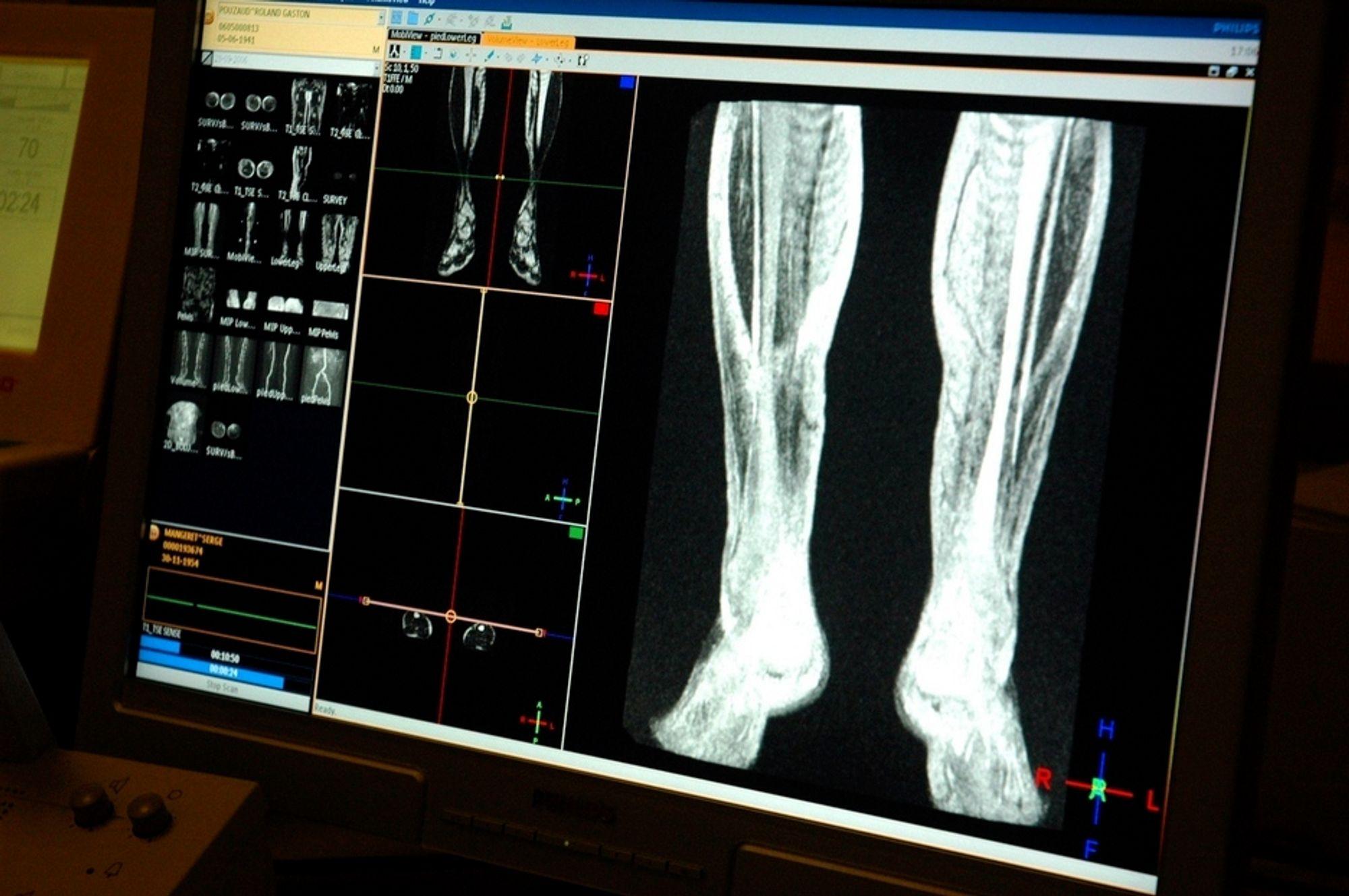 Samles. Digitale pasientjournaler og røntgenbilder i ett system skal øke effektiviteten ved norske sykehus.