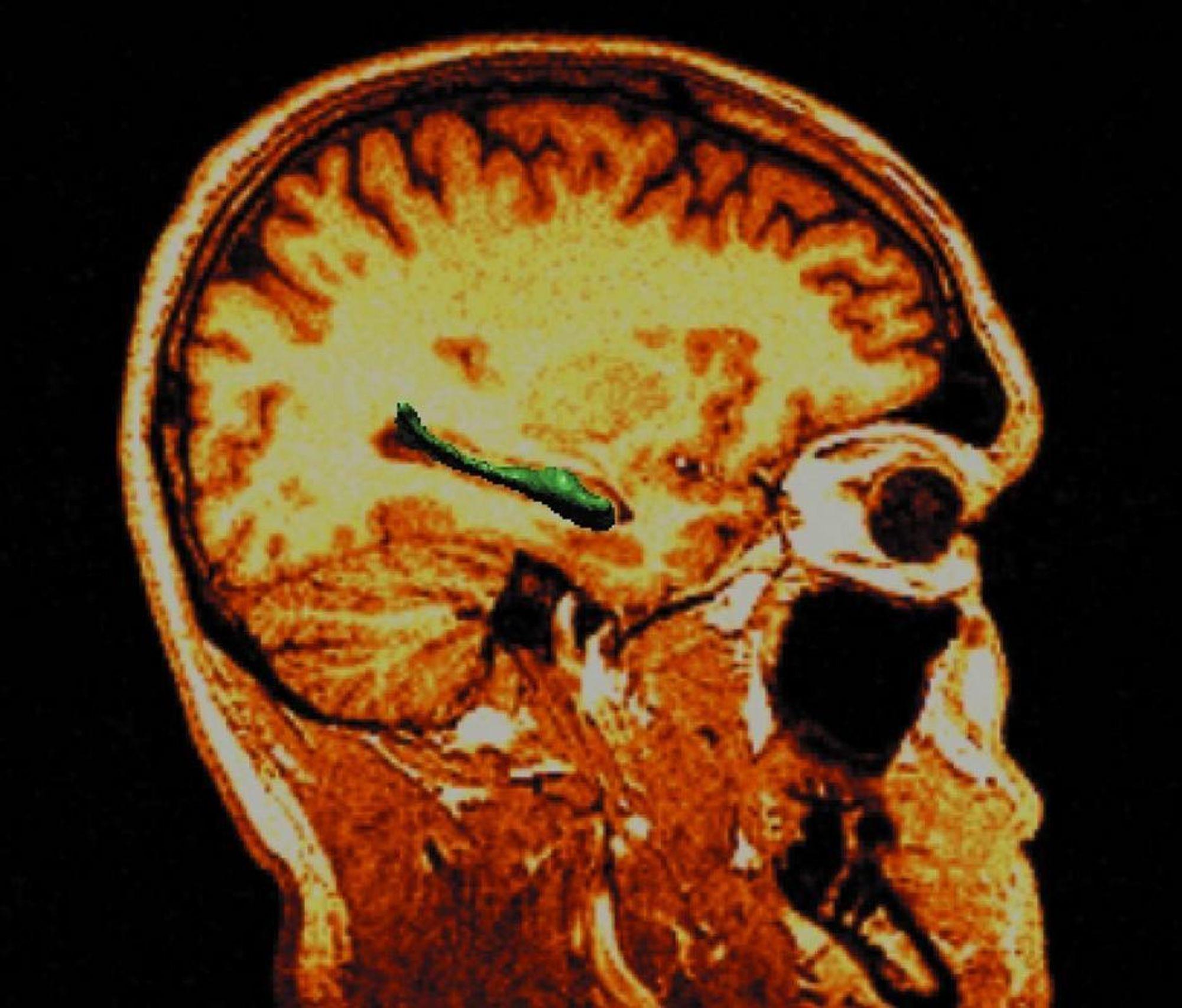 VIKTIG DEL: Kanskje ligger årsaken til autisme i mutasjoner som påvirker nervecellenes utvikling i hippocampusen (merket grønn).
