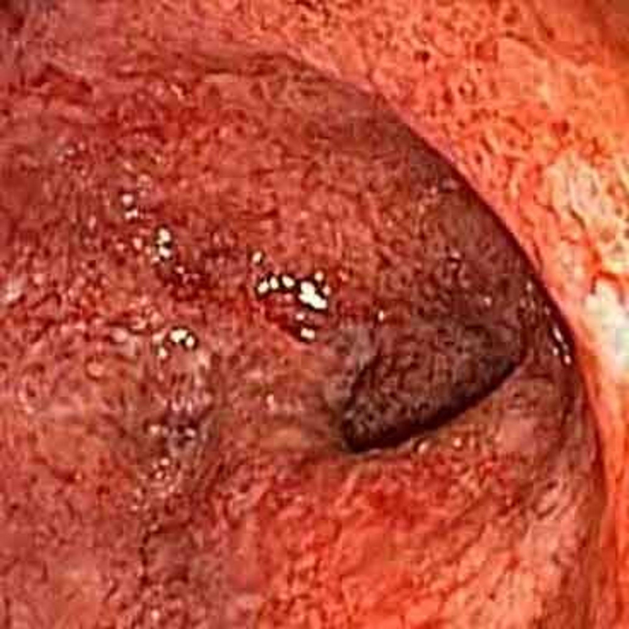 Filming av indre organer med endoskopi har vært et stort framskritt innen medisinen. Nå kommer noe som kan være enda bedre.