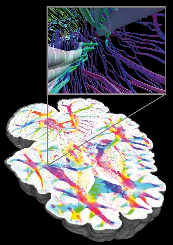 Zoom into a 3D reconstruction of a human brain based on Polarized Light Imaging, Forschungszentrum Jülich, Germany