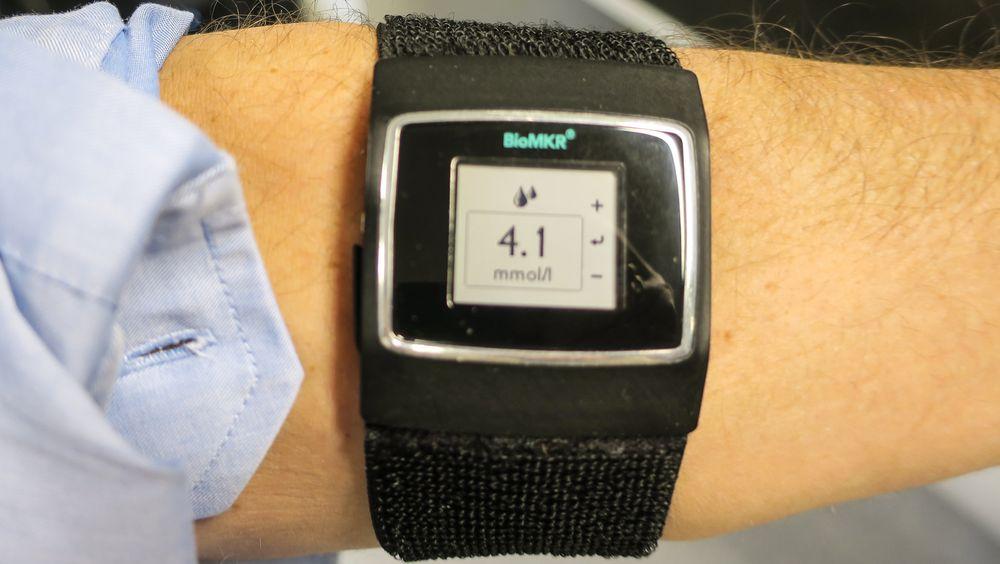 Armbånd for diabetikere: Med den nye norske multisensoren kan diabetikere få glukoseverdien rett på armen uten å stikke seg.