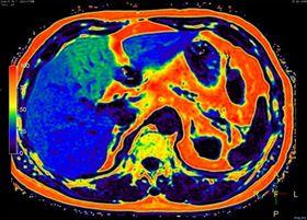 En MR-maskin kan kvantifisere mengden fett i et tverrsnitt i kroppen. Det blå og grønne området til venstre er leveren.