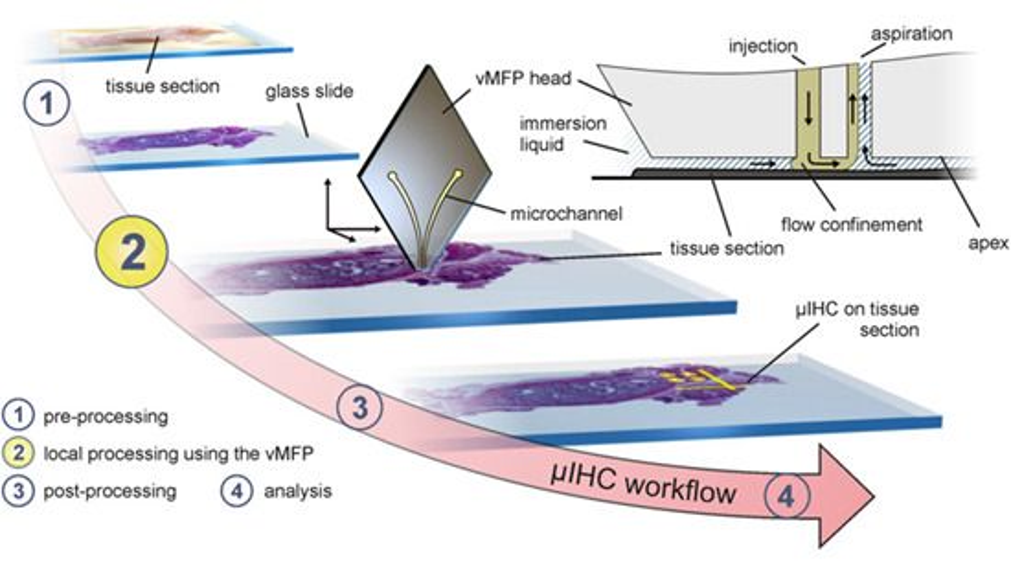 Silisiumsonden, her merket «vMFP» for «vertical microfluidic probe», endrer ikke arbeidsflyten i vevsanalyse etter metoden µIHC, «micro-immunohistochemistry»: Den inngår kun i trinn 2, der antistoffer oppløst i væske tilføres vevsprøven. Skissen øverst til høyre viser den nederste spissen på sonden. Det er aldri fysisk kontakt mellom sonden og vevsprøven: Avstanden styres til mellom 1 og 30 mikrometer, slik at det alltid er en væske («immersion liquid») mellom vev og sonde. Væske med antistoffer (angitt i grønt) føres ned mot vevet gjennom den ene mikrokanalen i sonden, og suges opp, sammen med væsken som vevsprøven bader i, gjennom den andre mikrokanalen. Slik sørger man for at antistoffer kun kommer i kontakt med en svært liten del av vevsprøven. I trinn 3 utsettes prøven for væsker som synliggjør vevets reaksjon på antistoffene. I trinn 4 analyseres vevet under mikroskop.