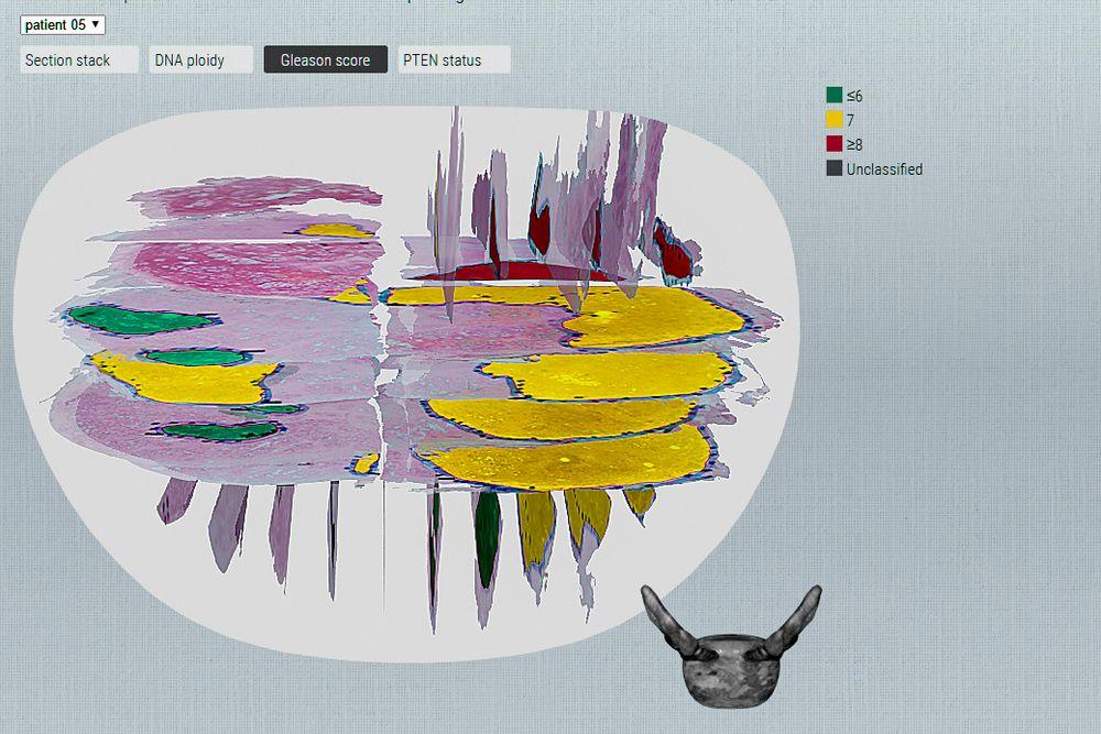 Svulsten varierer: DoMore skal automatisere de patologiske undersøkelsene av kreftsvulster. De ulike fargene på figuren viser hvordan den genetiske sammensetningen i en svulst varierer. Den riktige medisinen for en farge passer ikke til de andre.