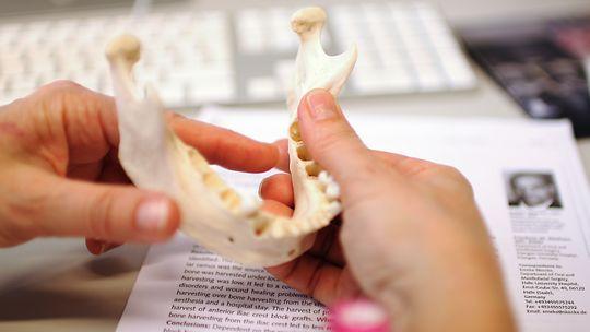 Bygges opp: Der tennene mangler, vil kroppen hente beinmateriale til gjenbruk andre steder. Den innerste delen av kjevekammen står derfor igjen som en smal egg hos pasientene i Gjerdes prosjekt. Ved hjelp av stamcellene bygger hun opp igjen nok bein til å sette inn implantater.