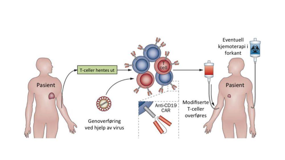 CAR-terapi: Med denne varianten av immunterapi henter man ut immunceller og gir dem nye egenskaper baser på genetisk modifikasjon. Immuncellene dyrkes opp på utsiden av pasienten og når man har nok settes de modifiserte cellene, som kan spore opp og drepe kreftceller, tilbake i blodet.