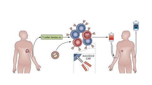 Den nye kreftmedisinen trigger kroppens egne drapsmaskiner. Slik virker den