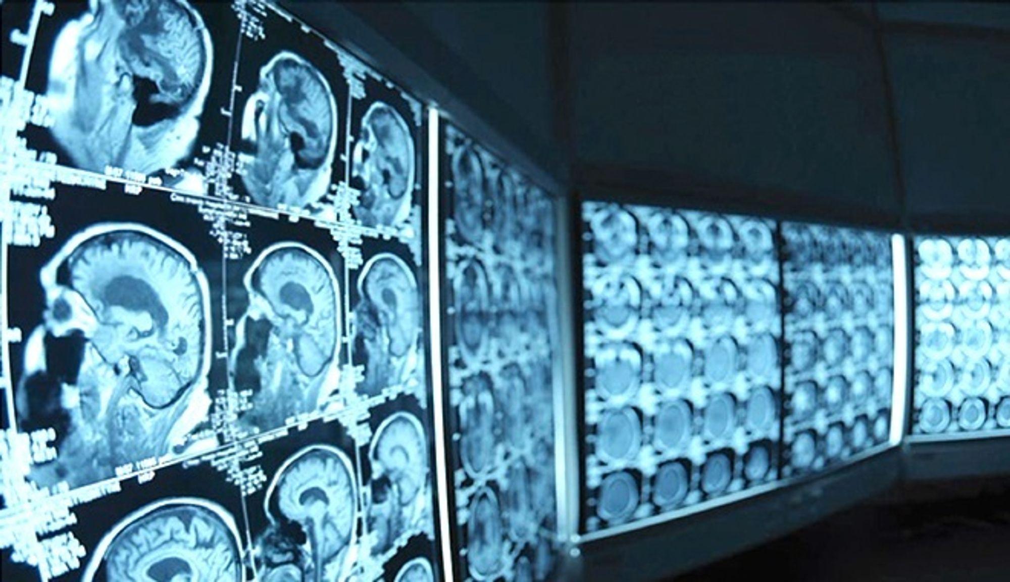 Hvor mye stråling: Det er lett å ta røntgen for å se inn i kroppen, men på barn er det viktig å ikke bestråle for mye. På Ahus har brukt kognitiv datateknologi for å lese og forstå medisinske journaler. Her ligger svaret på hva som er riktig.