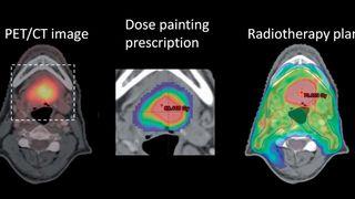 Skal ta knekken på den mest aggressive kreften: Større doser stråling på de mest hissige delene av svulsten