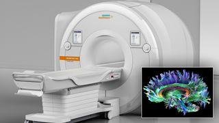 Ny sensorteknologi gjør at MRI-maskinen kan ta bedre bilder – på kortere tid