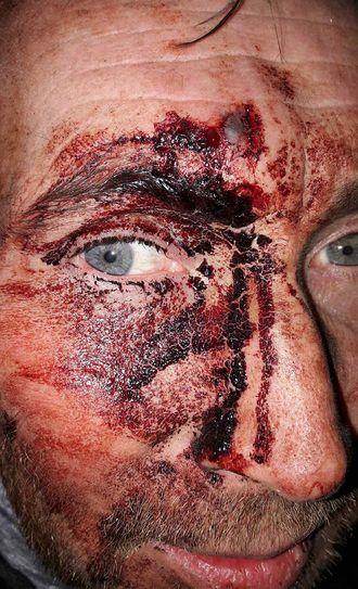 Blodig: Hundeføreren ble slått med en planke med spiker i. Han har samtykket til at bildet av ham publiseres.