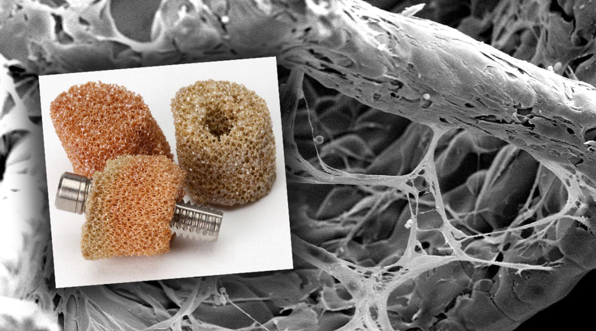 Vokser inn: I et elektronmikroskop kan man se at beinceller vokser rundt de større titanoksidstrukturene og inne mellom dem. Beinvev som vokser i porøs titanoksid blir mye sterkere (innfelt bilde)