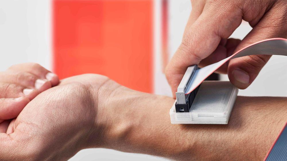Enkelt og billig: En ispose og en rask skanning med et billig apparat basert på termosensorer kan man se om enkelte celleområder varmer seg opp raskere enn andre. Det kan være en indikator for hudkreft