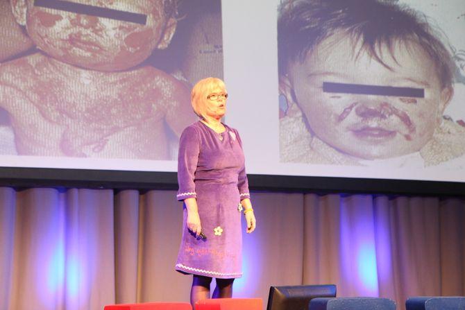Ada Sofie Austergard legger ingenting i mellom når hun henvender seg til voksne som jobber med barn.