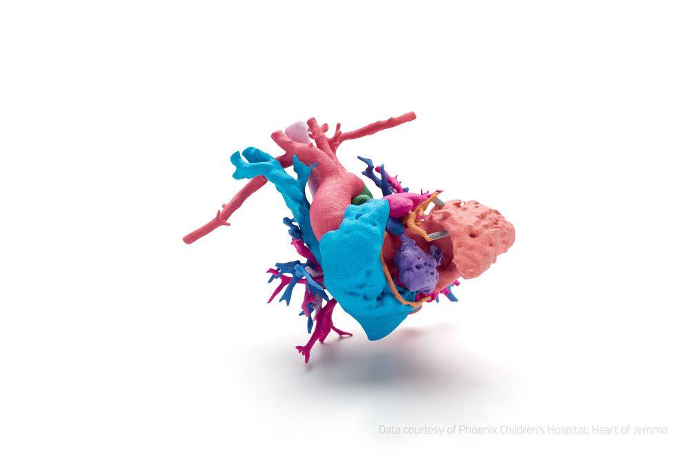 Hjertet til Jemma: Hjertet til den unge jenta Jemma, som led av en kompleks hjertefeil, ble skrevet ut i farge på basis av radiografiske 3D-bilder fra Phoenix Children's Hospital for å forberede operasjonen og for å forklare foreldrene om tilstanden.