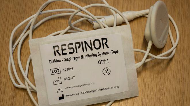 3,2 millioner pasienter legges i respirator hvert år - norsk oppfinnelse gjør den rådyre behandlingen billigere